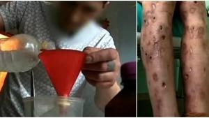 Image illustrant l'article Russie: Voici la drogue la plus dangereuse et mortelle au monde ! Regardez les effets destructeurs sur le corps ! (Vidéo)