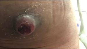 Image illustrant l'article Son bouton sur les fesses est énorme, l'infirmière le perce et c'est inimaginable de voir ce qui en sort...