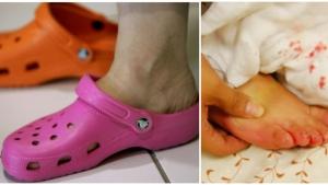 Image illustrant l'article Importante mise en garde d'un médecin contre les chaussures crocs !