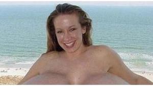 Image illustrant l'article 18 augmentations mammaires horriblement ratées! Grosse pensée aux copains des filles 13, 14 et 17...