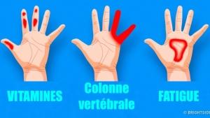 Image illustrant l'article 7 Trucs Importants Que Vos Mains Cherchent À Vous Dire Sur Votre Santé!