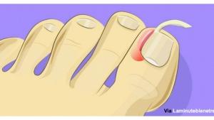 Image illustrant l'article Non, vous n'avez plus besoin d'une opération pour un ongle incarné ! Les conseils pratiques: