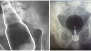 Image illustrant l'article Les docteurs dévoilent 17 objets glauques qu'ils ont dû retirer des parties génitales de leurs patients...