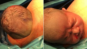 """Image illustrant l'article La tête du bébé sort du ventre de la maman via une """"césarienne naturelle""""."""