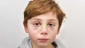 Image illustrant l'article Un enfant de 7 ans a été tué par ses parents, ce que le docteur trouve dans sa main m'a retourné le coeur!