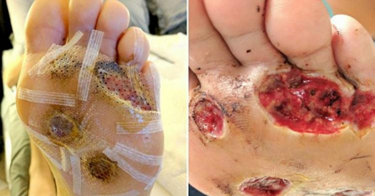 Image illustrant l'article Attention À Ce Geste Qui Lui A Valu Une Horrible Infection Des Pieds! Trop De Gens Le Font!